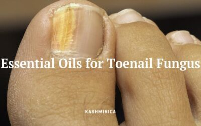What are the 4 Best Essential Oils for Toenail Fungus?